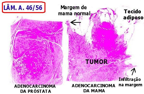 cancer de prostata unicamp)