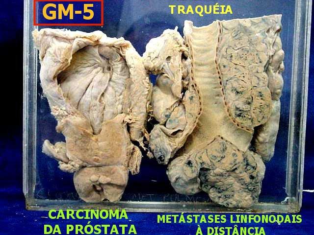 cancer de prostata linfonodos)