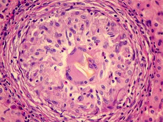 Ciroza hepatica   eusuntmic.ro