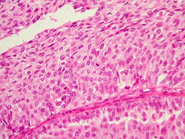 O que e enterobiose ou oxiurose - primariacetateni.ro - Papiloma urotelial da bexiga