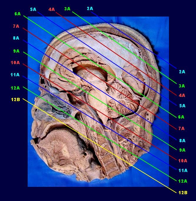 Ct anatomy of the brain