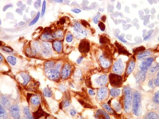Estudo imunohistoquímico da expressão da proteína p53 em carcinoma da mama 4
