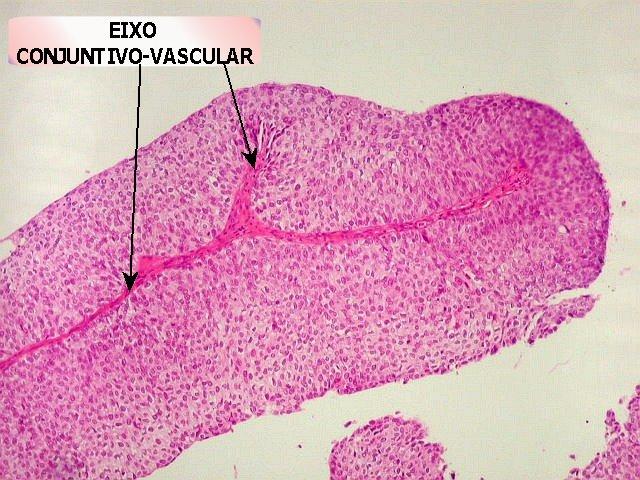 cum să elimini viermii din stomac giardiaza trebuie tratată e
